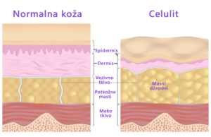 Kako nastaje Celulit